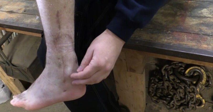 Alvorlig Høstulykke: Fik Knust Benet I Sneglen På En Mejetærsker